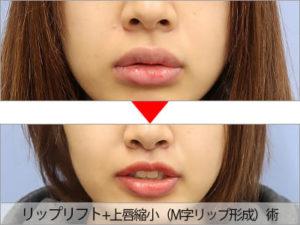 ゆうこす 鼻 整形 前後比較 鼻の下 リップリフト