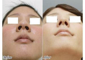 ゆうこす 鼻 整形 前後比較 小鼻