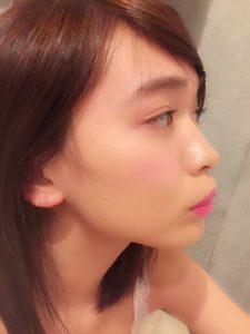 ゆうこす 鼻 整形 前後比較3 鼻低い
