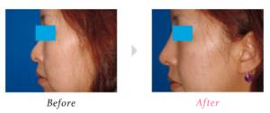 ゆうこす 鼻 整形 隆鼻術